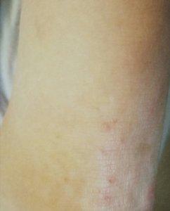 Neurodermitis Fuß vorher