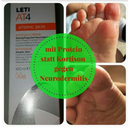 LetiAT4 gegen Neurodermitis